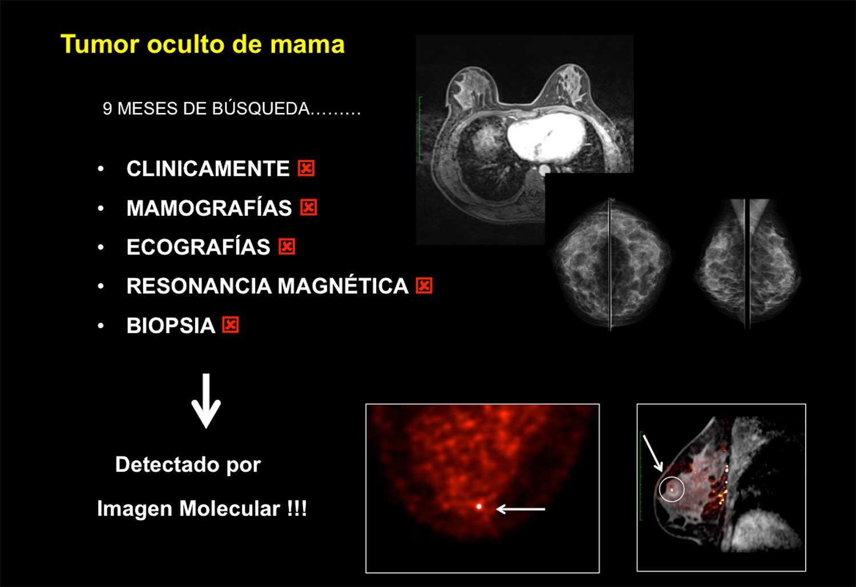 Tumor-oculto-de-mama