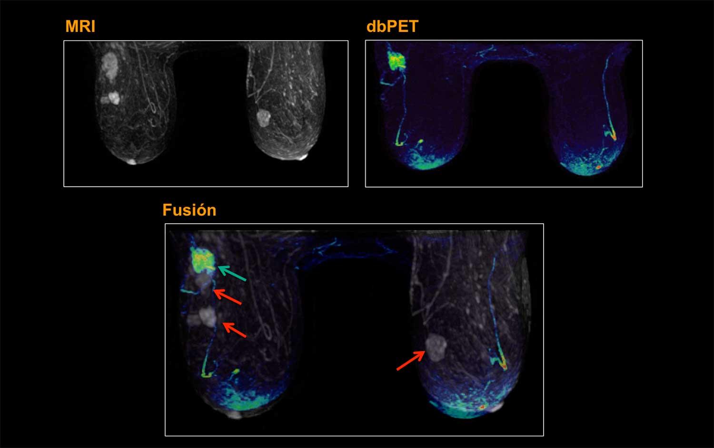 dbPET-y-MRI-falsos-positivos